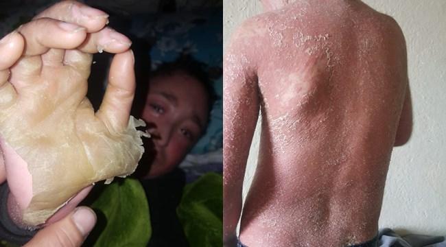6 yıldır derisi dökülüyor