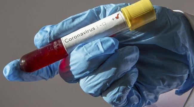 Son 24 saatte korona virüsten 151 kişi hayatını kaybetti